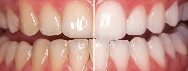 Teeth Whitening Before and After.